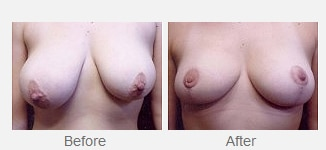 breast asmtry gallery button