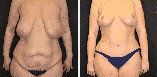 A before and after image set of a woman that underwent a mommy makeover