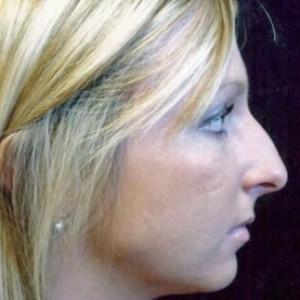 Case #2197 – Rhinoplasty