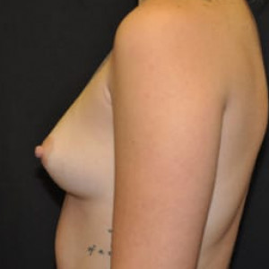 Case #4712 – Breast Augmentation