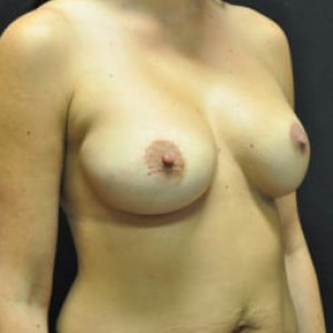 Case #4556 – Breast Augmentation