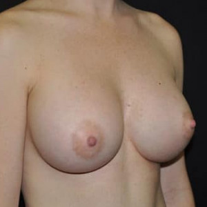 Case #5207 – Breast Augmentation