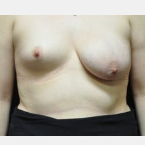 Case #4157 – Breast Asymmetry