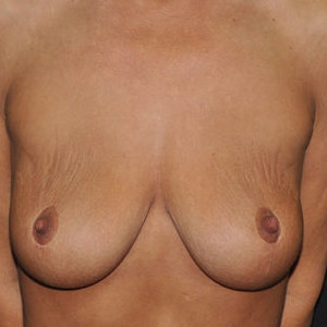 Case #5247 – Breast Lift with Breast Augmentation (staged)