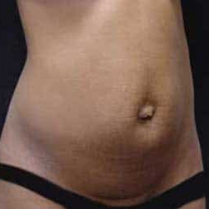 Case #2540 – Tummy Tuck
