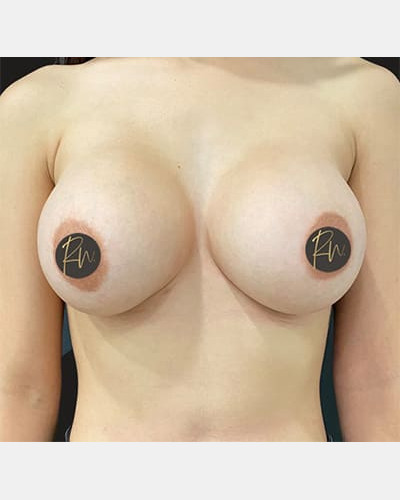 Case #5565 – Breast Augmentation